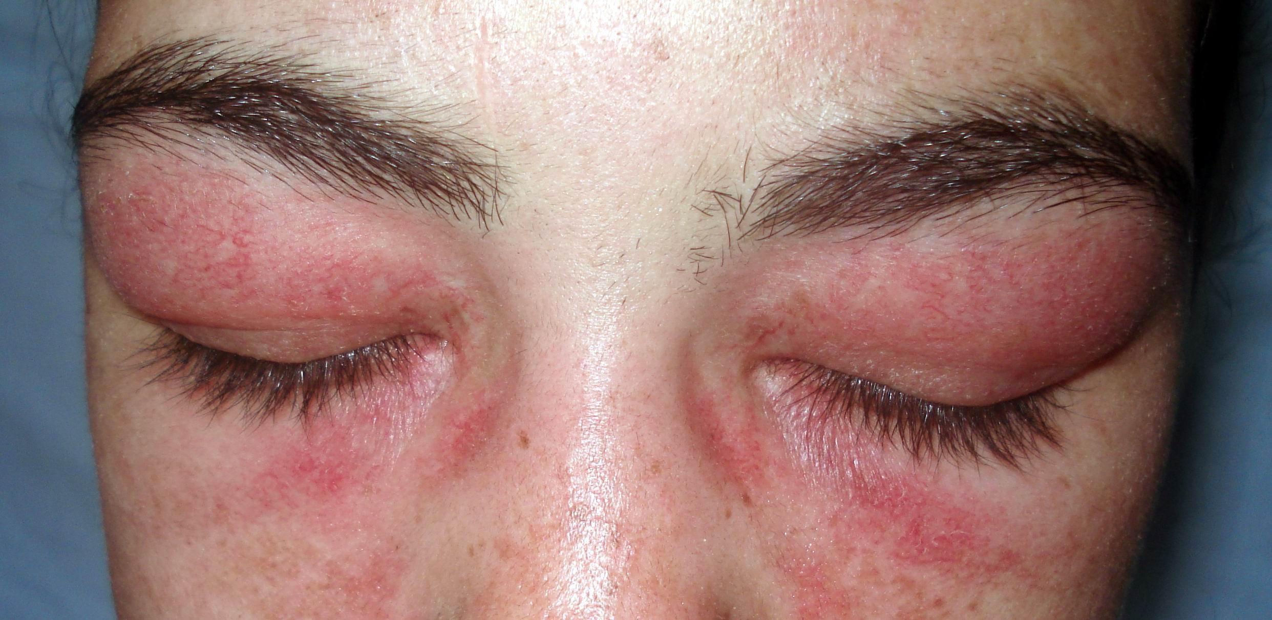 Myopathy | teesneuro.org