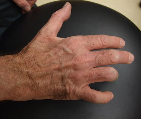 ulnar-neuropathy-wasting