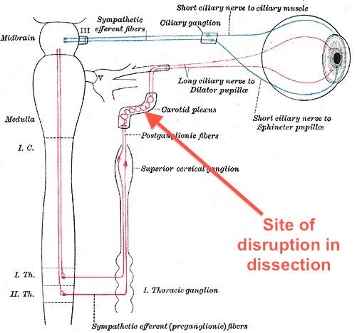 horner's syndrome