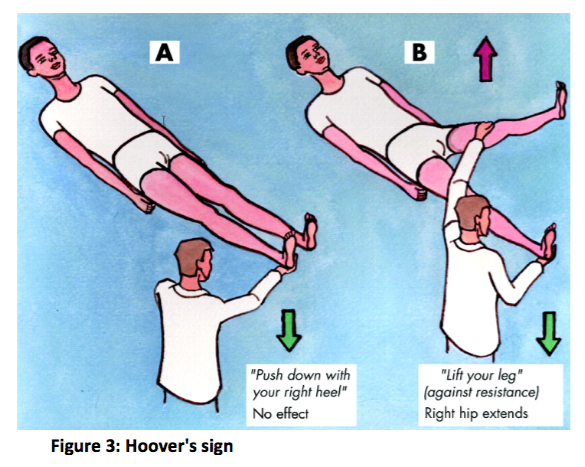 hoover's sign image