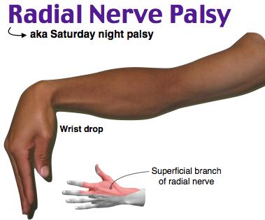 Radial nerve palsy