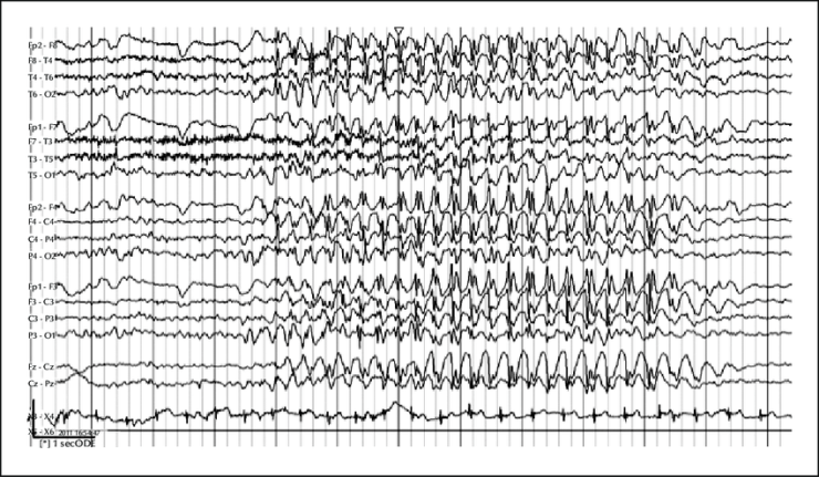 EEG-during-an-absence-seizure-showing-3-Hz-generalised-regular-spike-wave-activity